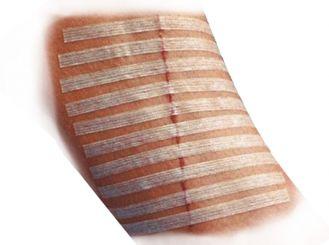 3M Steri-Strip Wundverschluss-Streifen, 12 x 100 mm 12x6 Stück