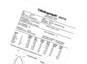 Printing roll Vitalograph Alpha 110mm x 30m 1x1 Role